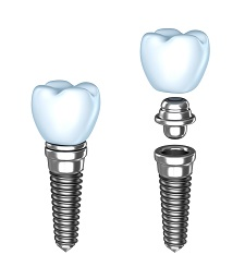 Dental Implant Construction | Randolph Family Dentistry in Randolph, MA